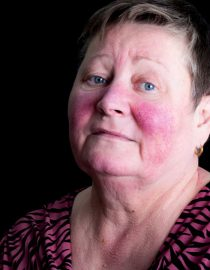 Lupus facial butterfly rash images