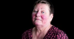 Living With Lupus Skin Rashes
