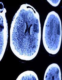 How Common Are Lupus Seizures?
