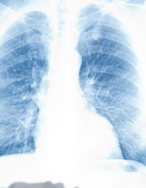 When Lupus Affects Your Lungs