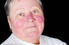 12 Lupus Symptoms to Be Aware Of